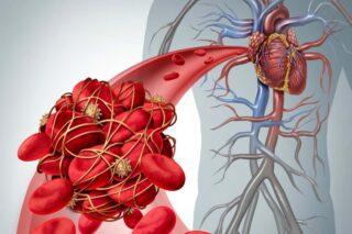 Thrombosis - Trombosis